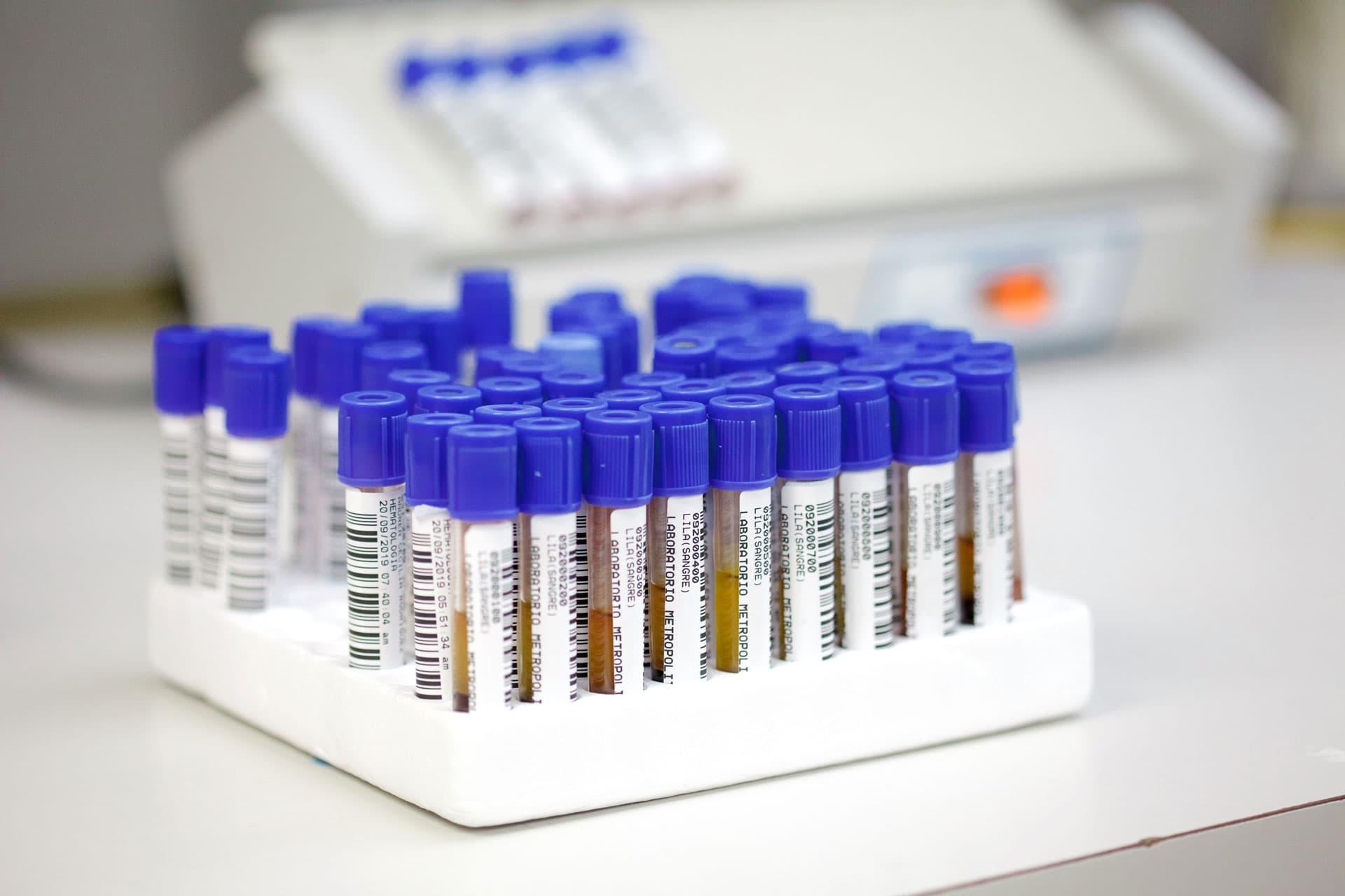 Cancer prostata psa 40 rmn hipertrofie prostatica
